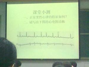 心电图小测
